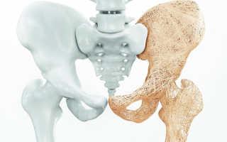 Какие лекарства нужно пить, чтобы укрепить и восстановить кости