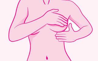 Чем лечат мастопатию – современный подход