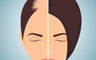Что поможет от выпадения волос