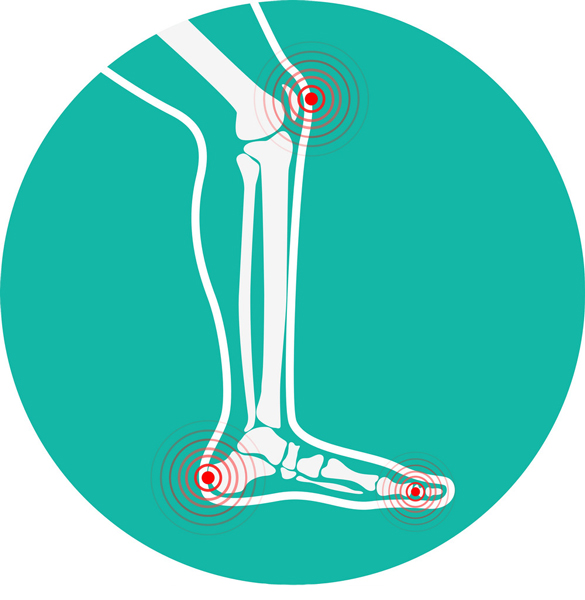 bady-pri-artroze
