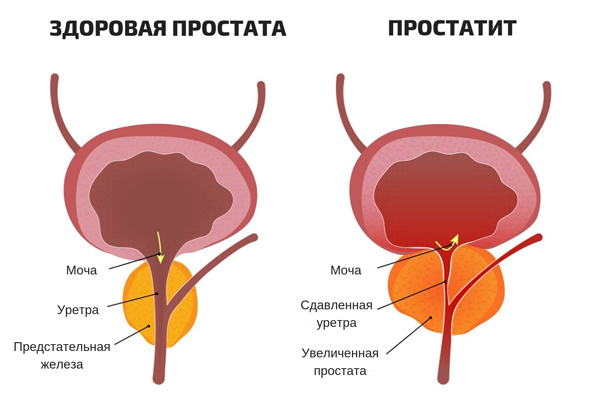 prostatit-skhema