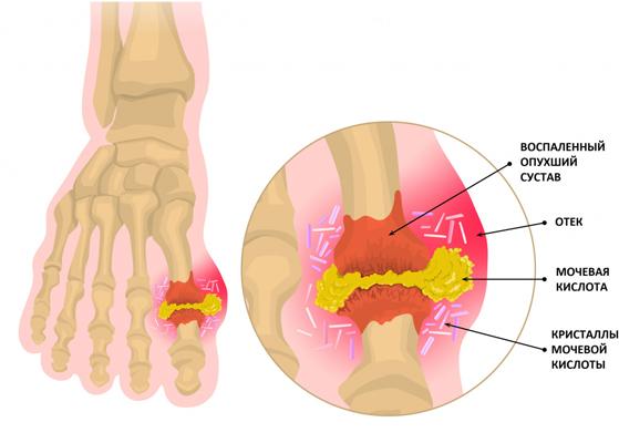 podagricheskij-artrit